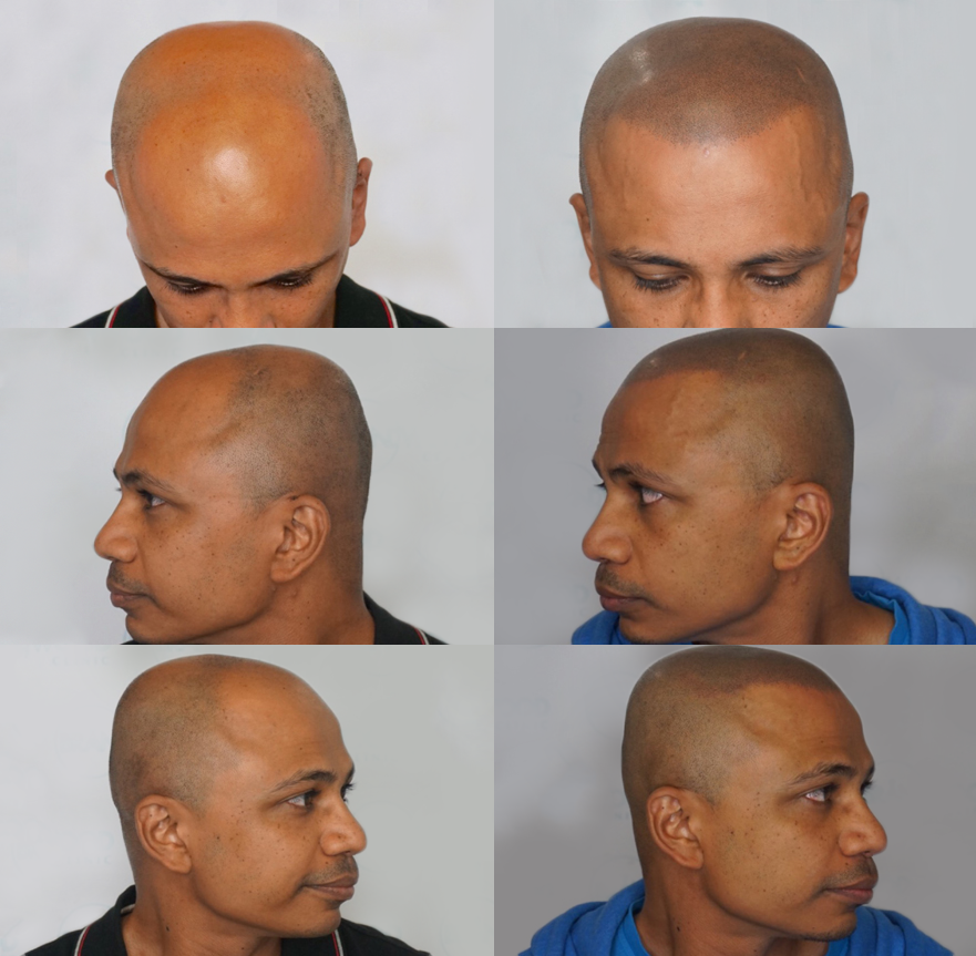 Hair Loss Solution Chatsworth