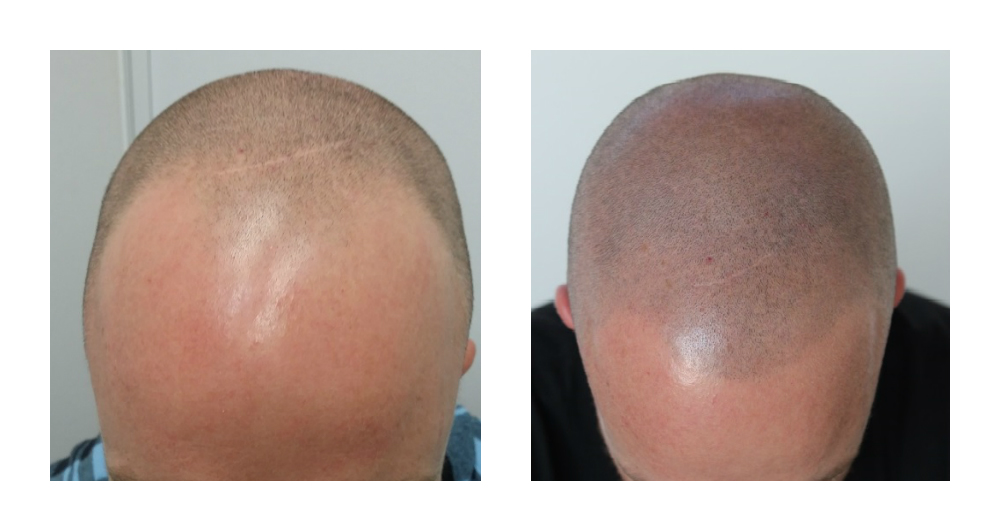 Scalp micro pigmentation Chatsworth