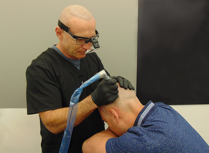 Hair Loss Solution Northridge