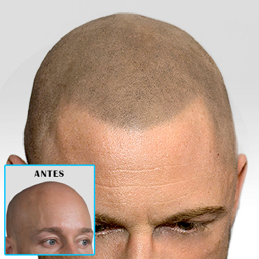 hair transplant alternative + Chatsworth