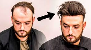hair transplant alternative+ Chatsworth