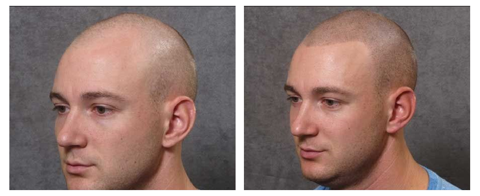 hair transplant alternative + Canoga Park
