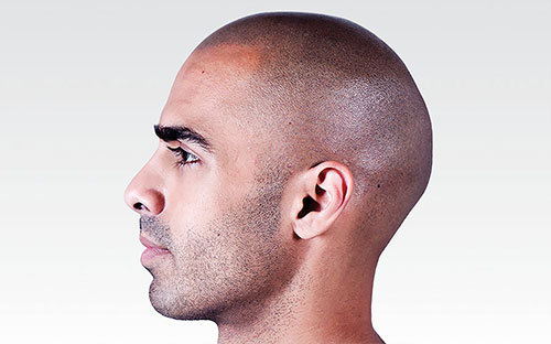 Scalp Micropigmentation Procedure